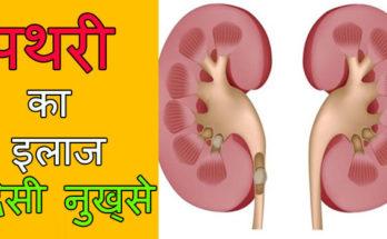 pathri-ki-dawa-dard-ke gharelu-upay